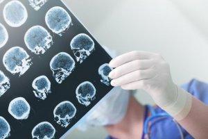 Introdução à Neuropsicanálise