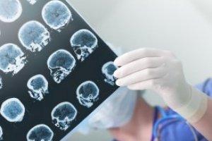 Introdução à Disfunção Neuromotora