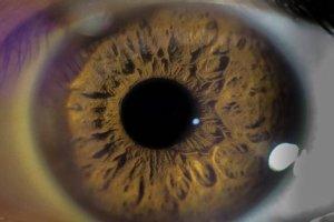 Introdução à Saúde Ocular
