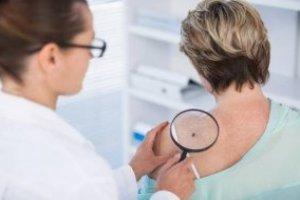 Introdução ao Câncer de pele - Prevenção e Tratamento