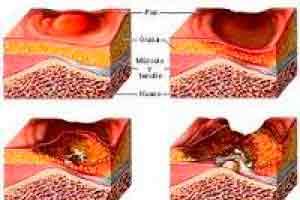 Úlcera por pressão