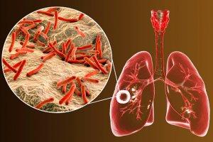 Introdução à Tuberculose - Diagnóstico Laboratorial - Baciloscopia